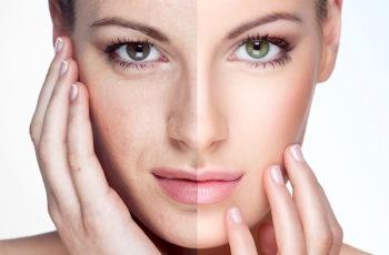 Envelhecimento precoce cuide da saúde da sua pele